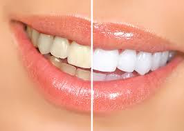 roselle dentist