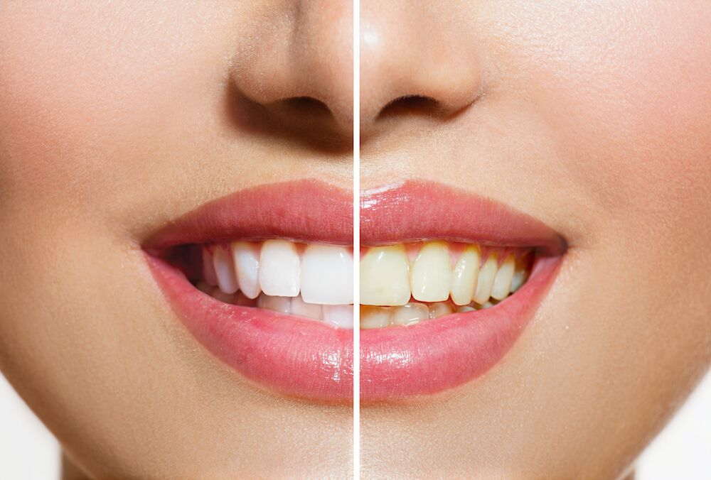 Roselle IL Dentist | Stained Teeth
